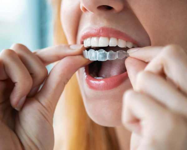 Close-up of woman wearing orthodontic silicone trainer. Invisible braces aligner.
